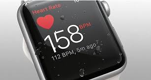 Not so fast. What really happened with FDA's clearance of the Apple Watch ECG